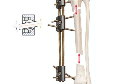 lrs external fixation