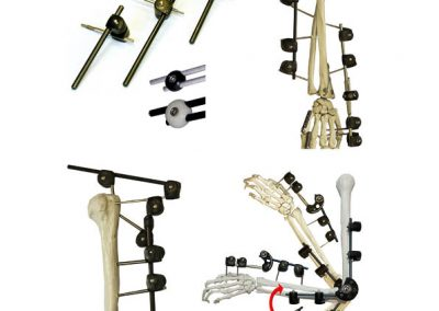 rigid external fixation